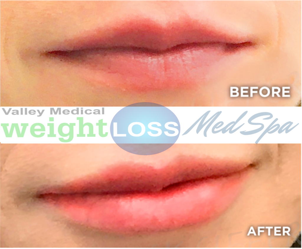 Lip filler before and after pictures