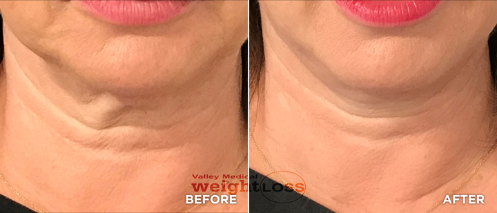 PDO Thread Lift neck before and after