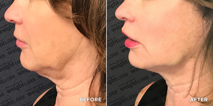 Profile female Before and After PDO Thread Lift