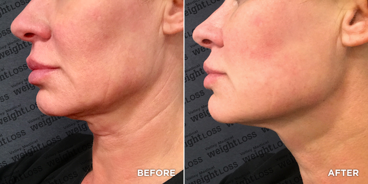 Female Before & After Jowl Thread Lift