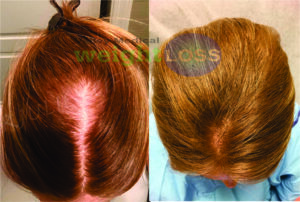woman crown head after PRP for Hair Loss treatments
